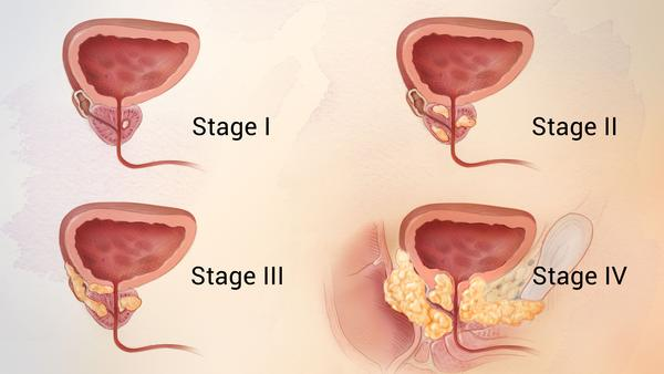 The progression of prostate cancer from stages one to four.