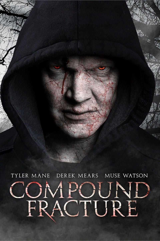 Compound Fracture-Compound Fracture